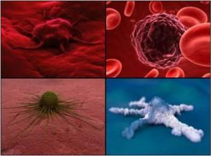 Ar vėžys paveldimas?