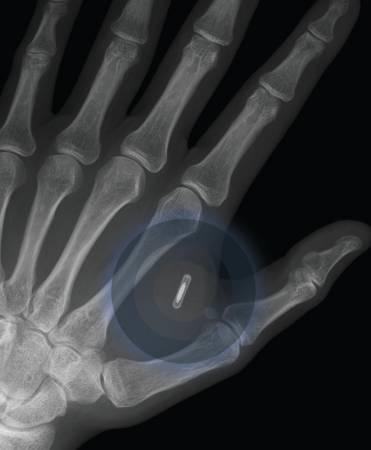 Rentgeno spinduliais apšviestoje rankoje matyti įmontuotas lustas